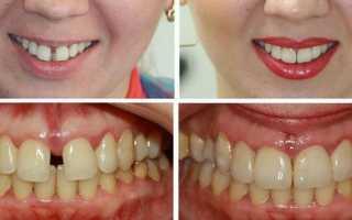 Зубы//зубья